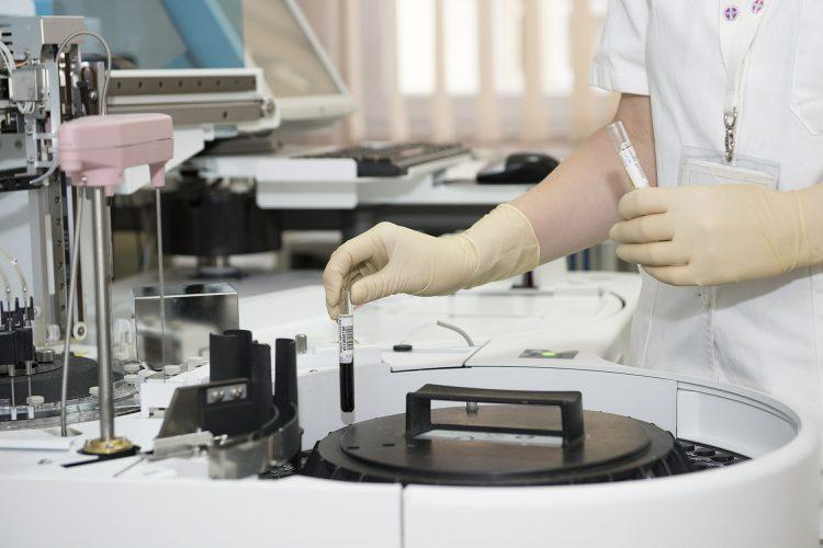 Hiv testen